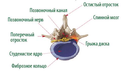 Лечение межпозвонковой грыжи в краснодарском крае thumbnail
