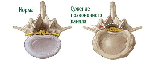 стеноз позвоночника